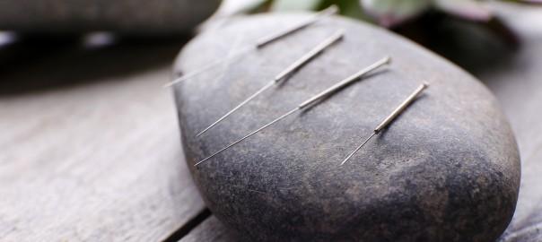 agopuntura 5